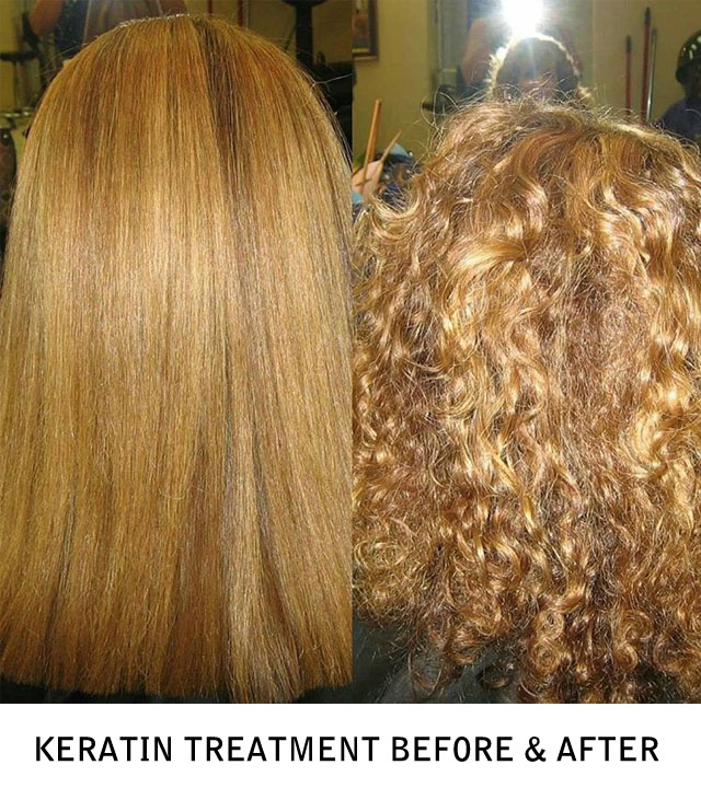 Kertain Complex Smoothing Therapy Before & After