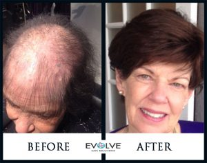 Evolve Hair Volumizer
